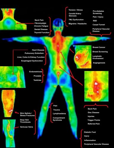 Full Body Scan